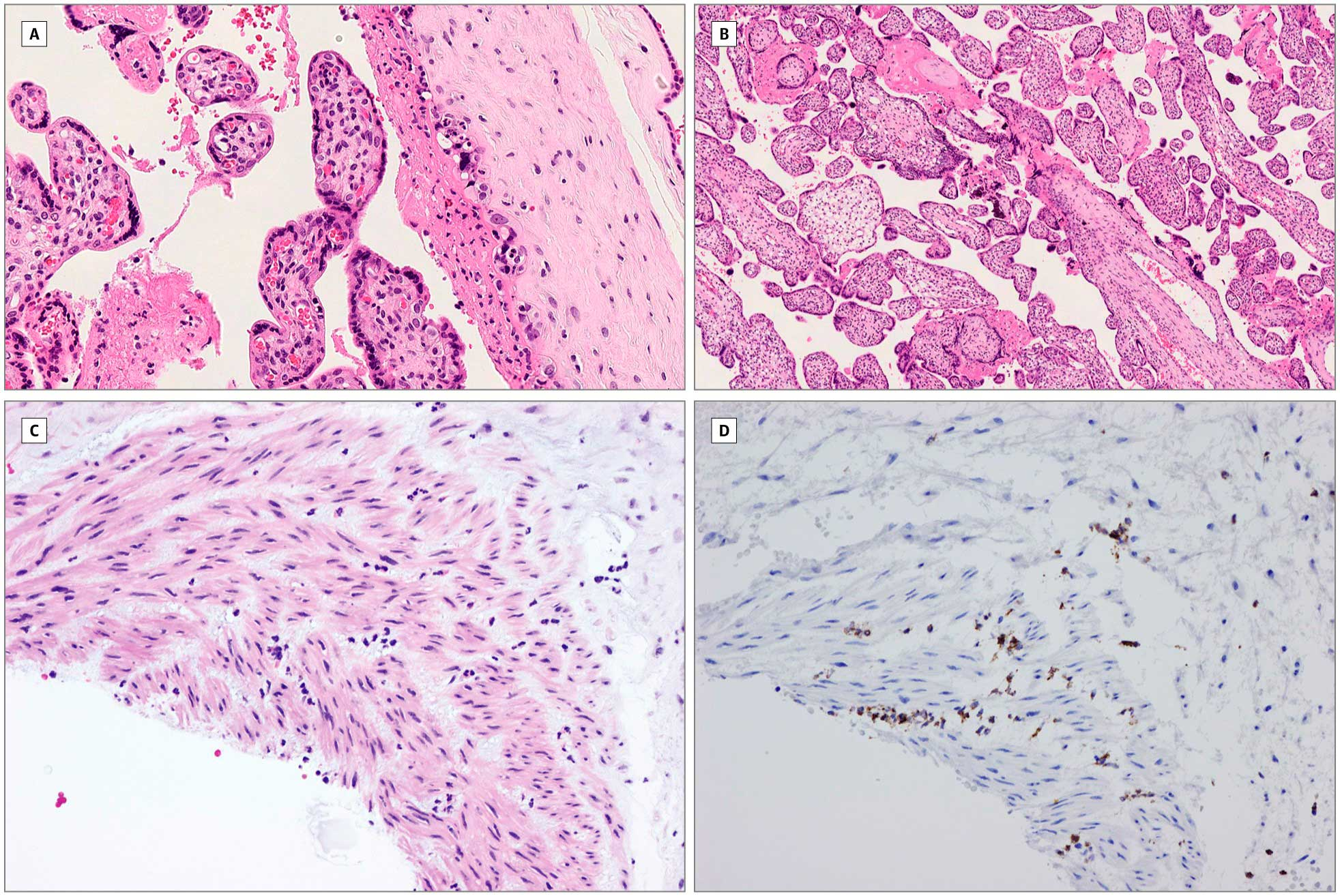 Самопроизвольный аборт во втором триместре у беременной женщины с инфекцией SARS-CoV-2
