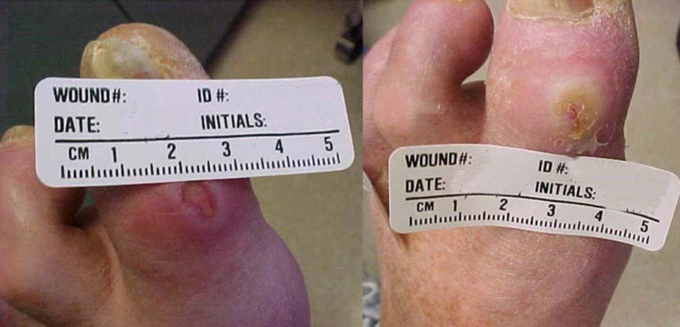Диабетическая язва первого пальца ноги до и после соответствующего лечения