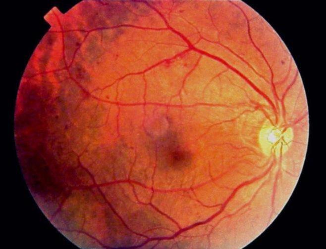 Дно глазного яблока на ранней стадии диабетической ретинопатии, видны множественные микроаневризмы