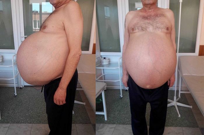 У пермяка за три года выросла 30-килограммовая злокачественная опухоль