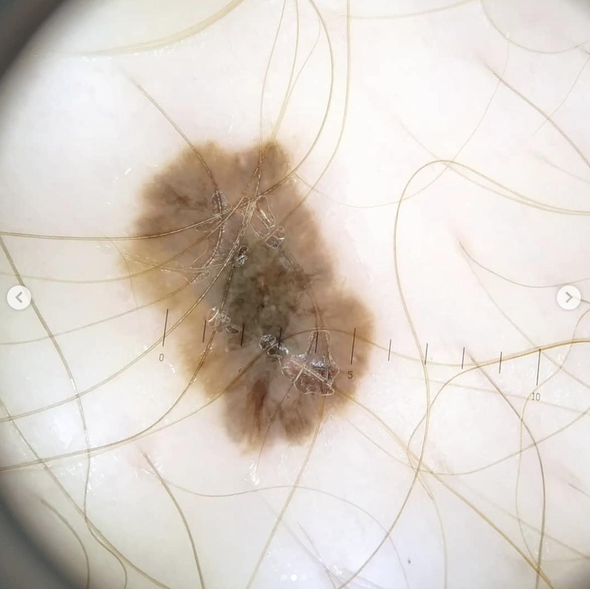 Ранние базальноклетоный рак кожи и меланома.