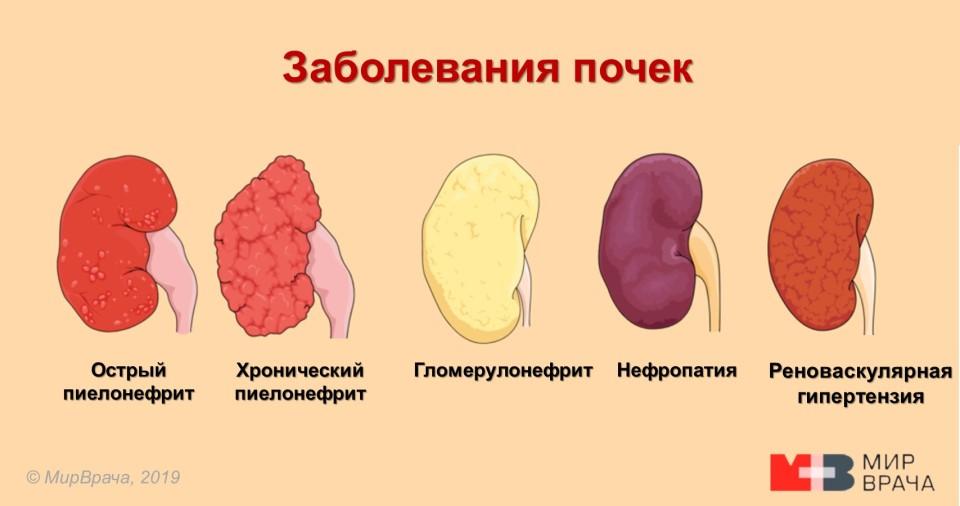 📕 Клинические рекомендации Хронический пиелонефрит у взрослых (сокращённый вариант)