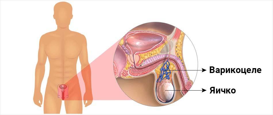 📕 Клинические рекомендации Варикоцеле